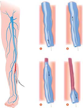 Endovenous Ablation