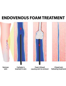 Foam Sclerotherapy