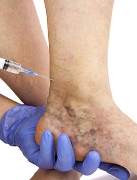 Injection Sclerotherapy