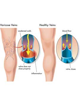 what-causes-varicose-veins_