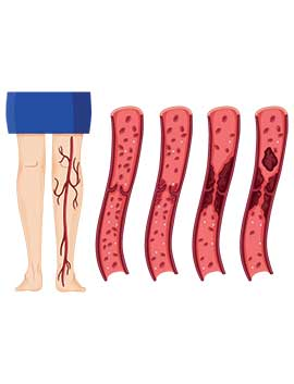 deep-vein-thrombosis