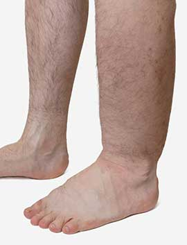 Image result for varicose veins ankle swelling